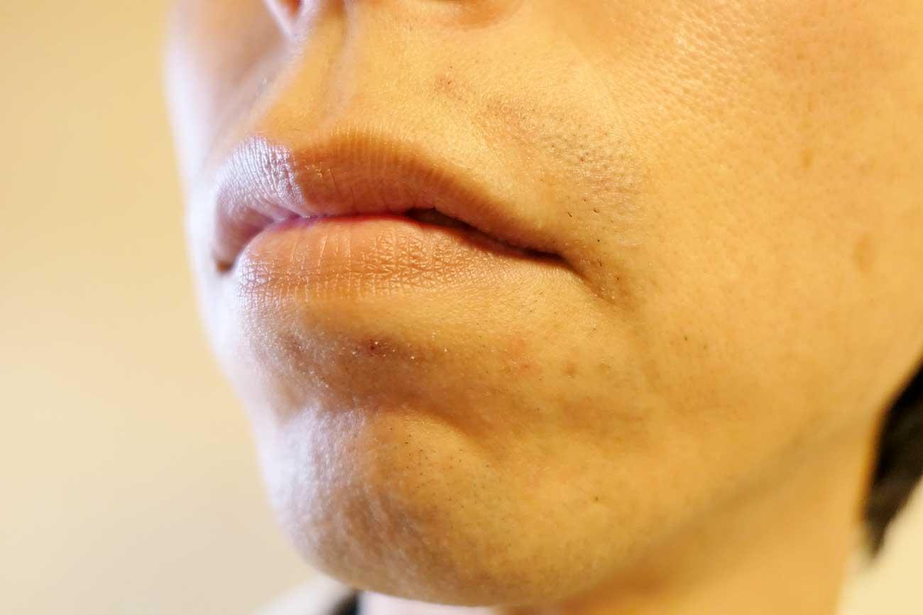 41日目で鼻下・口下がかなり減ってきた