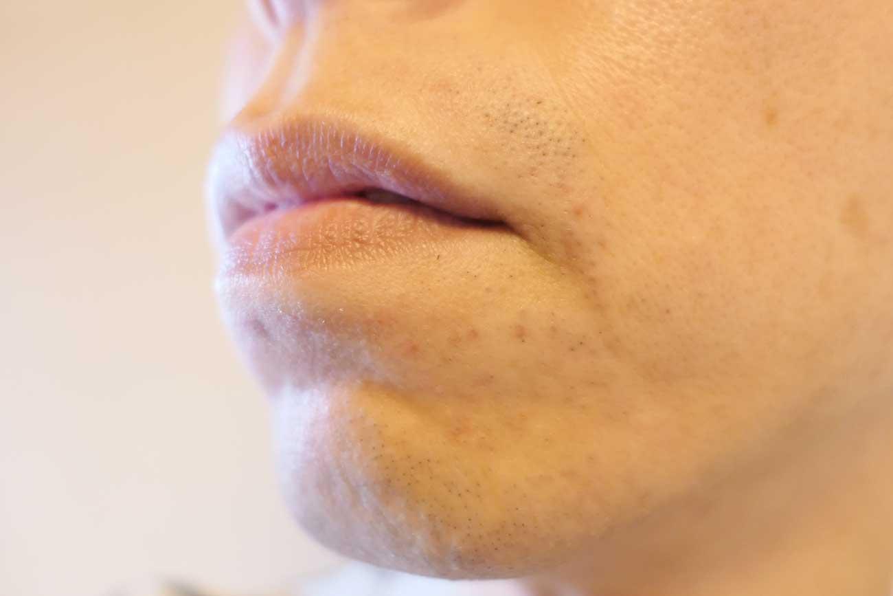 口の下のヒゲが生えない領域が拡大!