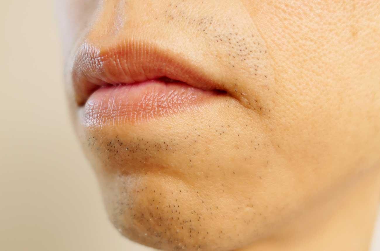 鼻の下の部分にヒゲが生えるように……