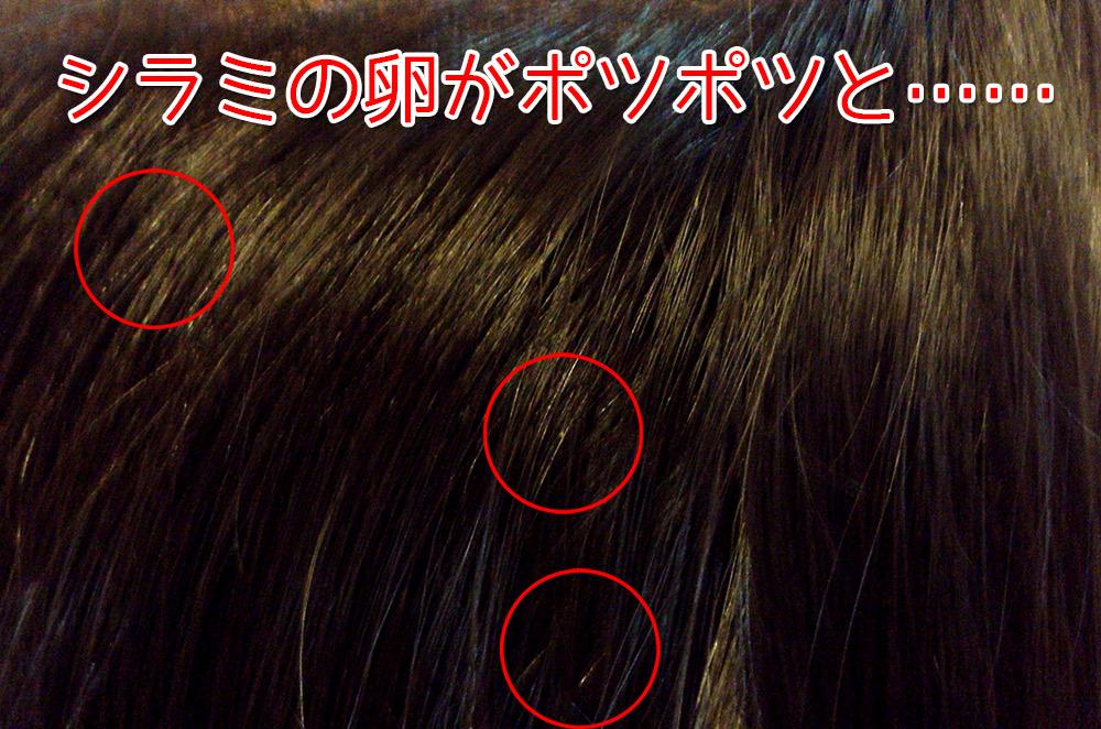 わかりにくいですが小さなシラミの卵が髪の毛の途中にポツポツと